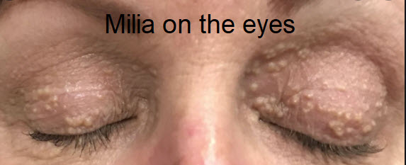 What is Milia on the eyes